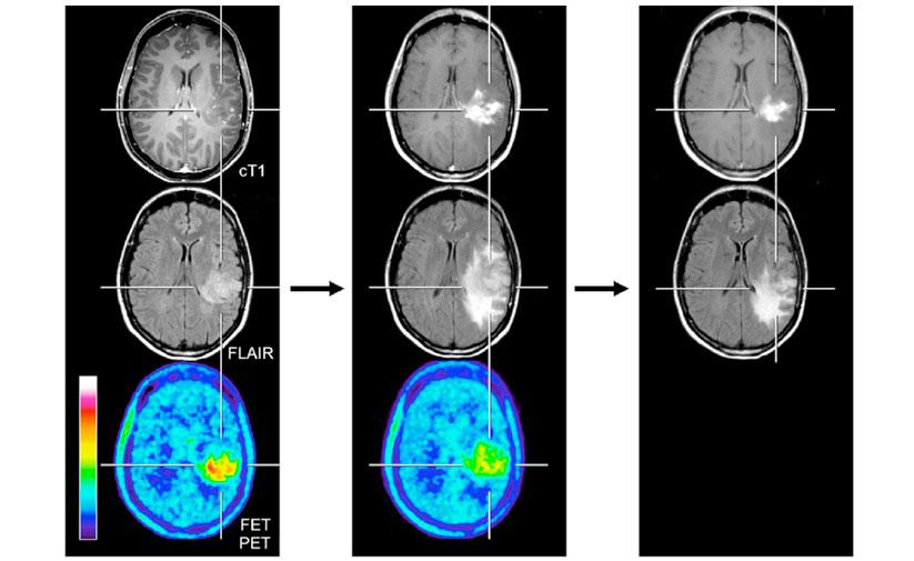 ПЭТ с тирозином позволило выявить псевдопрогрессию на МРТ